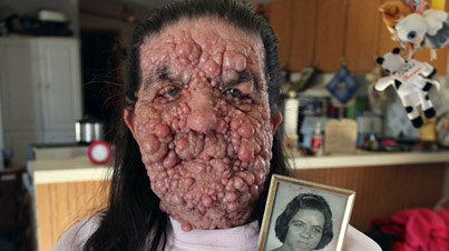 Bizarre Disease: 64-Year-Old Woman Covered In Benign Tumours
