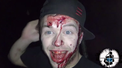 Don't Be Scared Homie: Dude Has A Funny Reaction To His Bloody Face After Car Crash