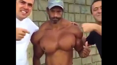 Look At The Boobies: Crazy Dude Injects At Least 100CC's Of Synthol Per Day In His Muscles