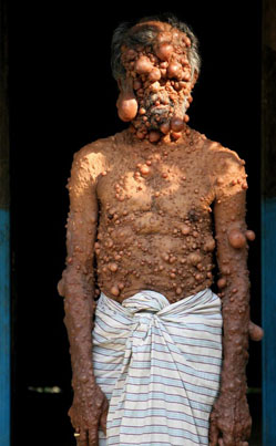 Man Has A Rare Medical Condition That Causes Tumors To Grow All Over His Body 😱