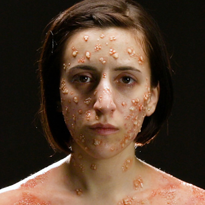 What Deadly Diseases Look Like On Your Body 😨😨😨