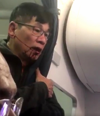 Just Kill Me: Aftermath Footage Of Bloodied United Airlines Passenger 😭😭😭