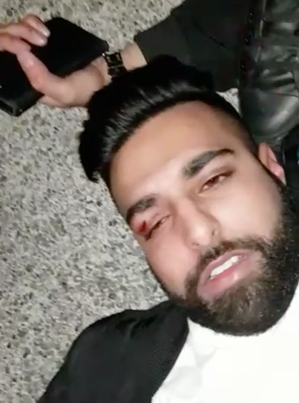 Surrey Pakora Gets Dropped For Putting Hands On A Female