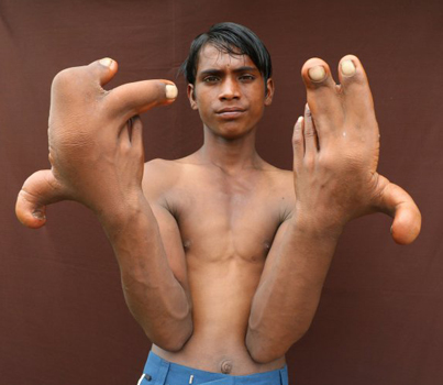 Meet The Indian Boy With The Giant Hands 😁😁😁