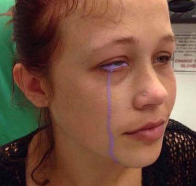 Eye Tattoo Leaves 24-Year-Old Canadian Model Partially Blind 👏😭