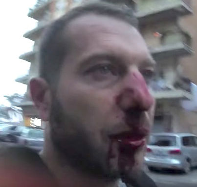 """Italian Thug From The """"Spada Mafia Clan"""" Shatters A Journalist's Nose 😂😭💀"""