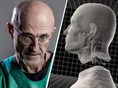 The World's First Human Head Transplant Has Been Successfully Carried Out