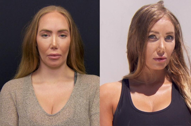 Woman Unhappy With Forehead Size Gets Reduction Surgery 😯😫💀