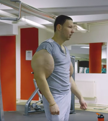 Russian 'Hulk' Injects Dangerous Chemicals To Look Deezed 💉💪🇷🇺🔴👑