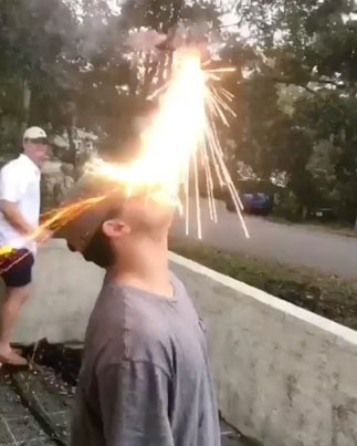 Waste Yute Takes Fireworks To The Face Like A Champ 💥💥💥🔴👑