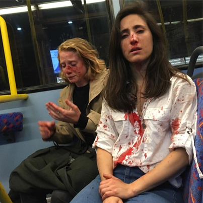 Lesbian Couple Attacked On London Bus After Refusing To Kiss For Men 🤕😱🇬🇧🔴👑